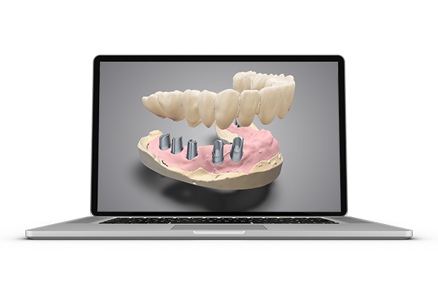 DWOS CAD CAM Implant-prosthetics-_new