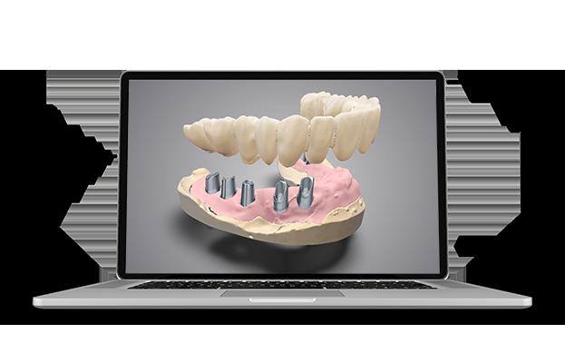 DWOS CAD CAM Implant-prosthetics-_new