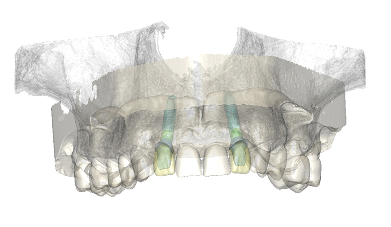 Simplant 1220083 ISfAA indication Multiple single tooth restorations web